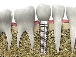 Dental Implants | Cosmetic Dentistry Center MA