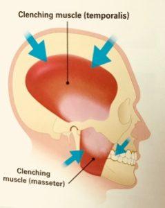 Bruxism | TMJ treatment Boston | Newton MA