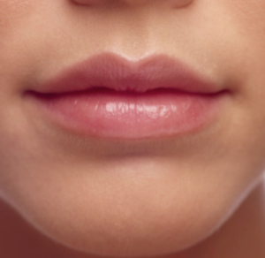 Lip Augmentation & After photos Boston MA | Newton